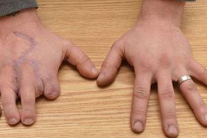 Έβαλε τα δάχτυλα των ποδιών του... στα χέρια