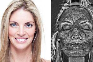 Η καταστροφή του δέρματος από τις ακτίνες UV