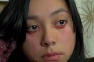 Κλαίει και βγαίνει… αίμα