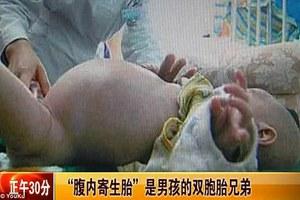 Δίχρονο αγοράκι... έγκυος με το δίδυμο αδερφάκι του