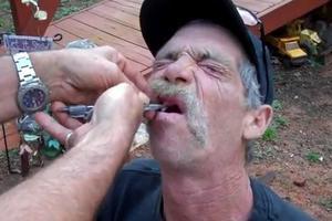 Έτσι κάνουν εξαγωγή δοντιού οι «σκληροί» του Τέξας