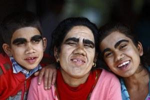 Μια νέα αρχή για τους «λυκανθρώπους» του Νεπάλ
