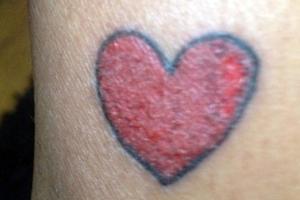 Το τατουάζ που έγινε... όγκος και αφαιρέθηκε χειρουργικά