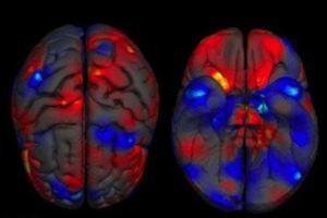 Οι άντρες έχουν μεγαλύτερους εγκεφάλους