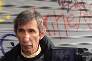 Χτυπήθηκε ευρωβουλευτής του ΚΚΕ