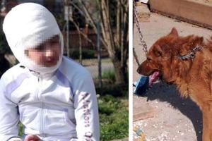 Σκύλος επιτέθηκε σε κοριτσάκι 11 ετών
