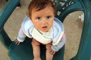 Κανένα νέο κρούσμα πολιομυελίτιδας στη Συρία