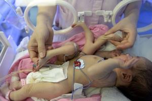 Μωρό γεννήθηκε με οκτώ άκρα
