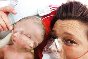 Το μωρό με τα δύο πρόσωπα