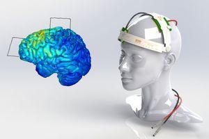 Λίγο ηλεκτρικό ρεύμα βοηθάει… τον εγκέφαλο