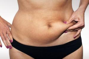 Τα παχάκια γύρω από τη μέση και ο κίνδυνος για τις γυναίκες
