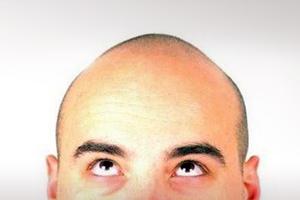 Φάρμακο για την αρθρίτιδα... κατά της φαλάκρας