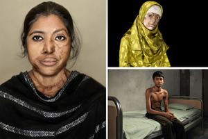 Συγκλονιστικές εικόνες ανθρώπων που γλίτωσαν από επιθέσεις με οξύ