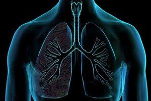 Διάγνωση καρκίνου του πνεύμονα από τη θερμοκρασία του εκπνεόμενου αέρα