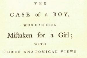 Η ιστορία μιας επέμβασης «αλλαγής φύλου» το 18ο αιώνα