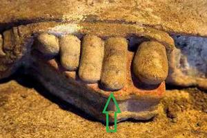 Χρονολόγηση των Καρυάτιδων με βάση τα ακροδάχτυλα