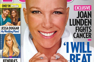 Παρουσιάστρια με καρκίνο ξύρισε το κεφάλι της