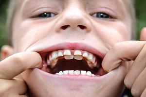 Οχτάχρονος έχει δύο σειρές δόντια!