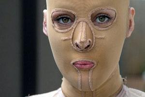 Η γυναίκα «χωρίς πρόσωπο» έβγαλε τη μάσκα