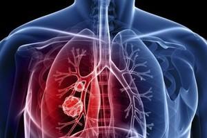 Οι ιοί «σύμμαχοι» των επιστημόνων στη μάχη με τον καρκίνο