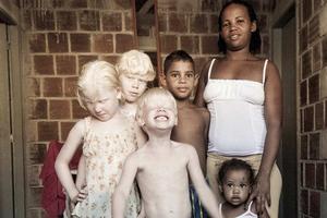 Η μαύρη μητέρα που γέννησε τρία λευκά παιδιά