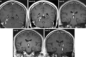 Ζούσε για τέσσερα χρόνια με ένα σκουλήκι στον εγκέφαλο