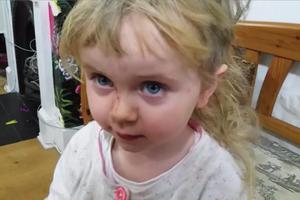 Δίχρονη παραδέχεται ότι έκοψε μόνη της τα μαλλιά της