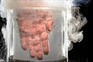 Τι γίνεται αν βάλετε το χέρι σας σε υγρό άζωτο