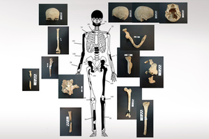 Το μυστήριο με τα 400 «ορφανά» οστά στην Αμφίπολη