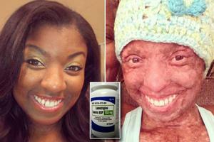Έχασε το 90% του δέρματός της από αλλεργική αντίδραση