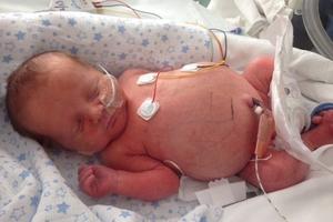 Μωρό γεννήθηκε με στομάχι στο μέγεθος μπάλας ποδοσφαίρου!