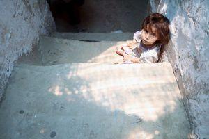 Μισό εκατομμύριο παιδιά αντιμετωπίζουν οξύ υποσιτισμό στην Υεμένη