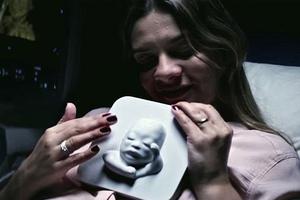 Τυφλή μέλλουσα μητέρα «είδε» το μωρό της με τα χέρια της!