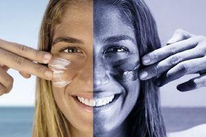 Η επίδραση της ακτινοβολίας UV χωρίς αντηλιακό