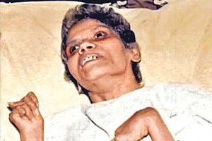 Πέθανε μετά από 42 χρόνια σε κώμα!