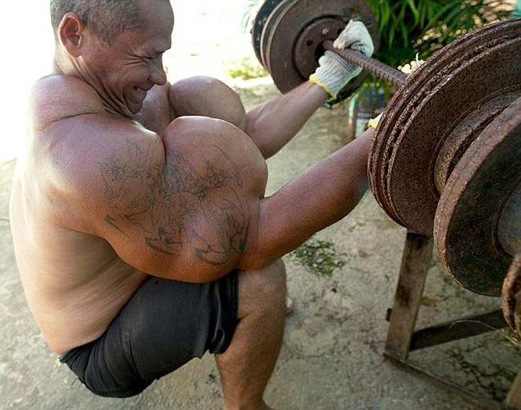 muscl1
