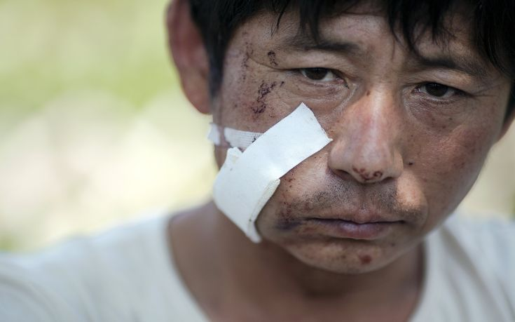 An injured man rests near the explosion site in Binhai new district in Tianjin, China August 13, 2015. Two huge explosions tore through an industrial area where toxic chemicals and gas were stored in the northeast Chinese port city of Tianjin, killing at least 44 people, including at least a dozen fire fighters, officials and state media said on Thursday. REUTERS/Damir Sagolj