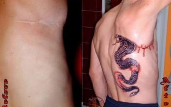 Τατουάζ που καλύπτουν ουλές