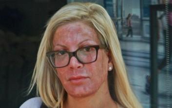 Το… τρομακτικό πρόσωπο της ομορφιάς