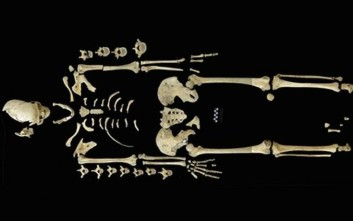 Ανακαλύφθηκε πιθανώς η αρχαιότερη περίπτωση λευχαιμίας