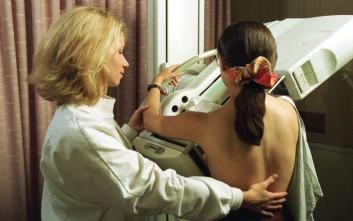 Πότε η μαστογραφία κρίνεται λιγότερο αναγκαία