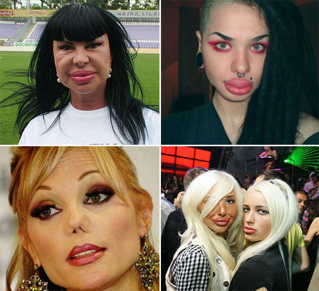 plastic_surgery_fails_15