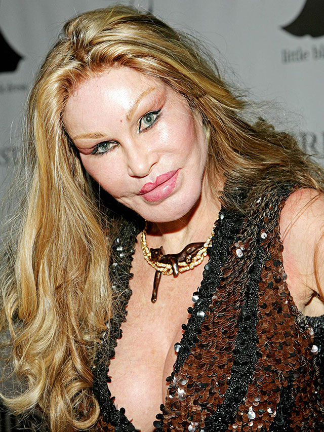 plastic_surgery_fails_16