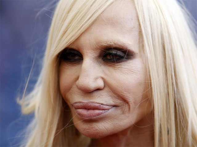 plastic_surgery_fails_5