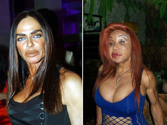 plastic_surgery_fails_6