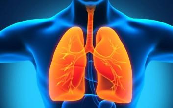 Ανακαλύφθηκαν πέντε ένοχα γονίδια για την πνευμονική αρτηριακή πίεση