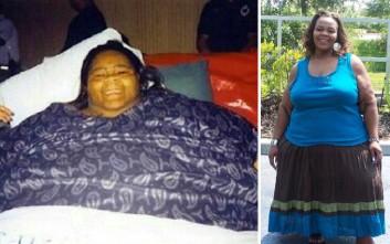 Η παχύτερη γυναίκα στον κόσμο έχασε… 230 κιλά!