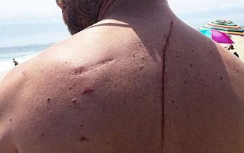 Πώς η επίθεση καρχαρία του έσωσε τη ζωή