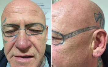 Ξύπνησε από άγριο μεθύσι και του είχαν κάνει τατουάζ στο πρόσωπο!