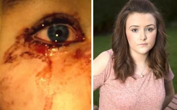 Το νεαρό κορίτσι που βγάζει δάκρυα από... αίμα